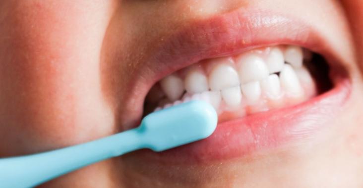 子供の歯・乳歯は虫歯予防が超重要